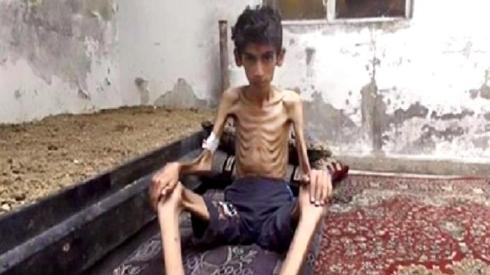 This undated photo posted on the Local Revolutionary Council in Madaya, which has been verified and is consistent with other AP reporting, shows a starving boy in Madaya, Syria. The Syrian government has agreed to allow humanitarian assistance into three beleaguered villages following reports of malnutrition in the area, a U.N. official said Thursday.Two of the villages in question are the adjacent Shiite villages of Foua and Kfarya in the country's north, which have been besieged by anti-government militants for more than a year. The third is the village of Madaya near the border with Lebanon, which has been under siege by government forces since early July. (Local Revolutionary Council in Madaya via AP)